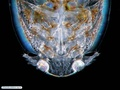 Parasitic copepod of fish